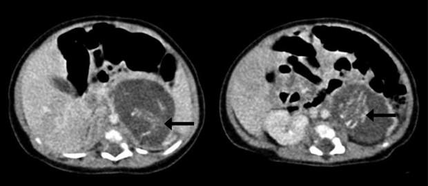 Setas em exame de tomografia computadorizada mostram a coluna de cada feto (Foto: HKMJ/Divulgação)