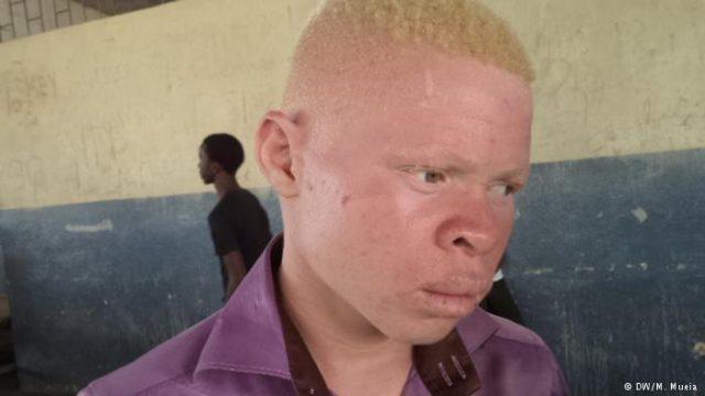 Aumenta rapto de albinos no centro de Moçambique
